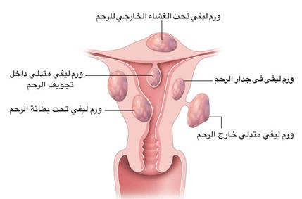 ما هي الألياف الرحمية وكيف يمكن علاجها؟