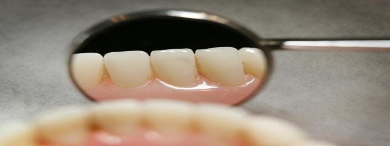 طرق التخلص من صفار الأسنان