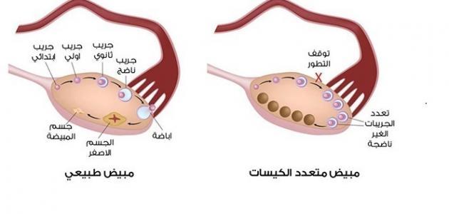 هل يمكن حصول الحمل مع وجود تكيس المبايض؟